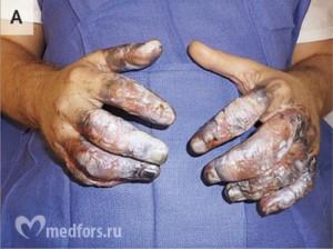 Обморожение пальцев 1