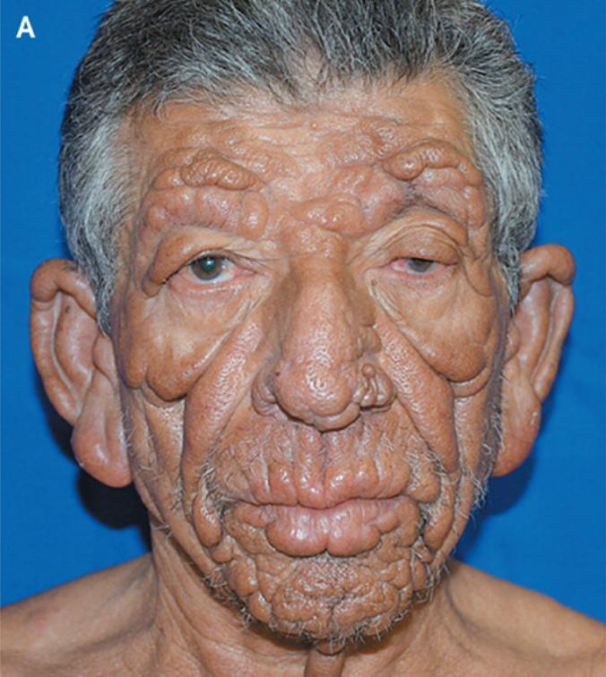 болезнь Хансена фото