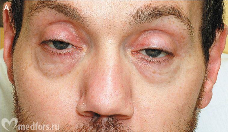 Синдром Мендельсона фото