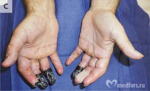 Обморожение пальцев 3