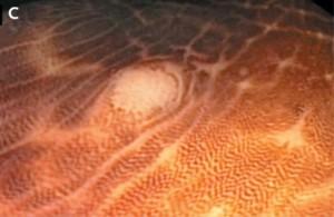 Меланоз толстого кишечника 3