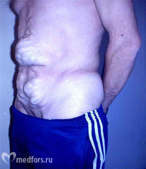 Варикозная болезнь нижних конечностей пример диагноза